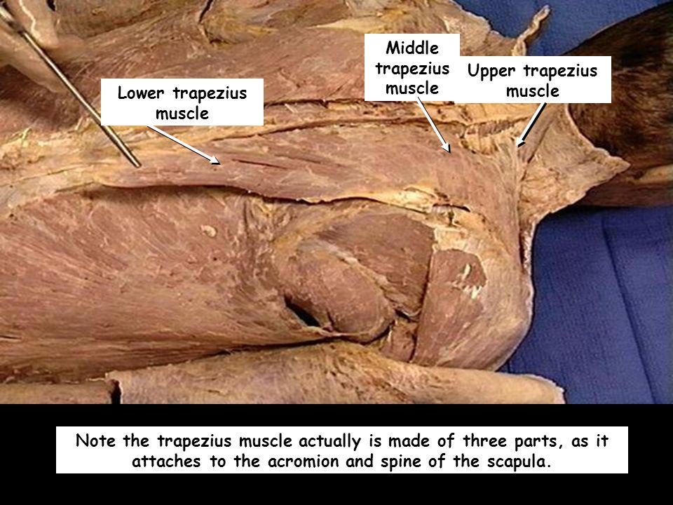 Middle trapezius muscle Upper trapezius muscle Lower trapezius muscle