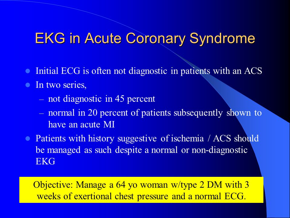EKG in Acute Coronary Syndrome