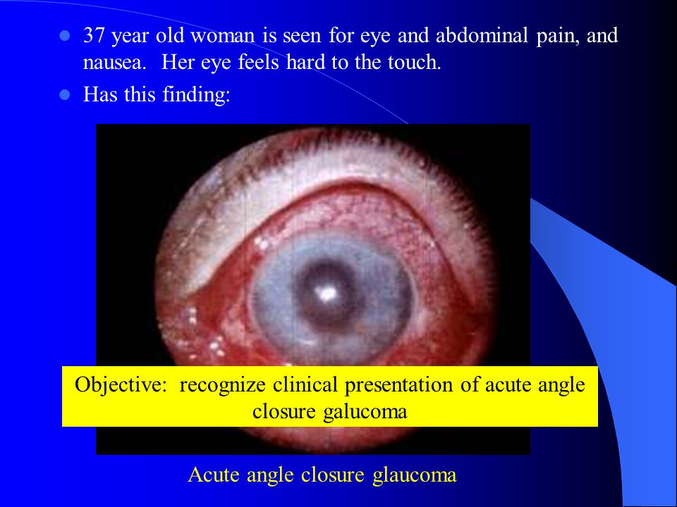 37 year old woman is seen for eye and abdominal pain, and nausea