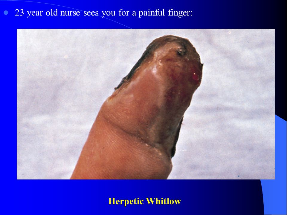 23 year old nurse sees you for a painful finger: