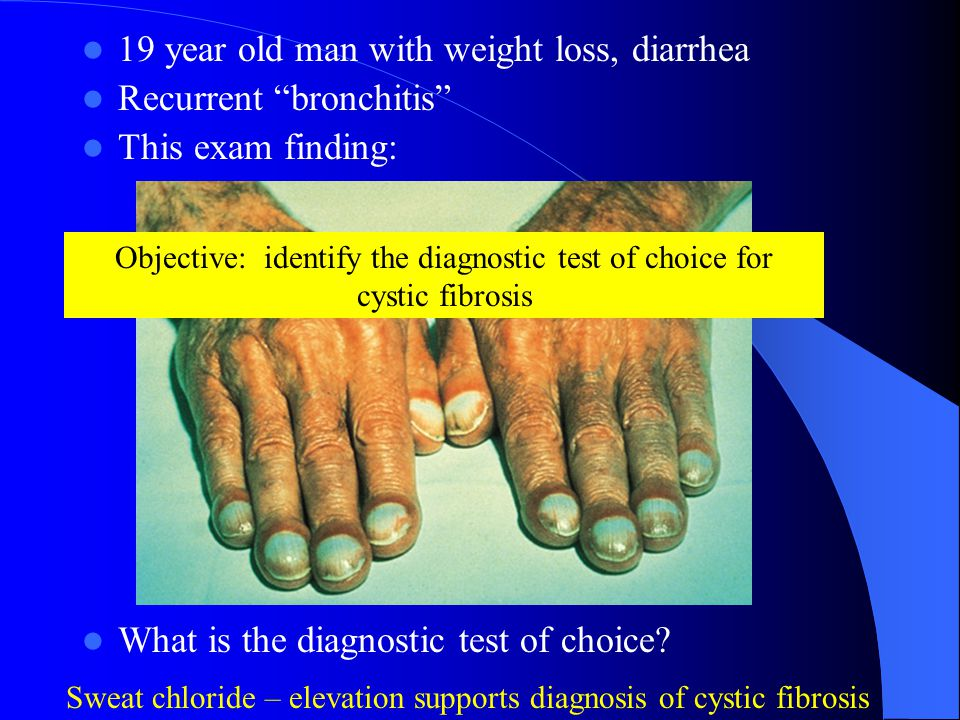 Objective: identify the diagnostic test of choice for cystic fibrosis