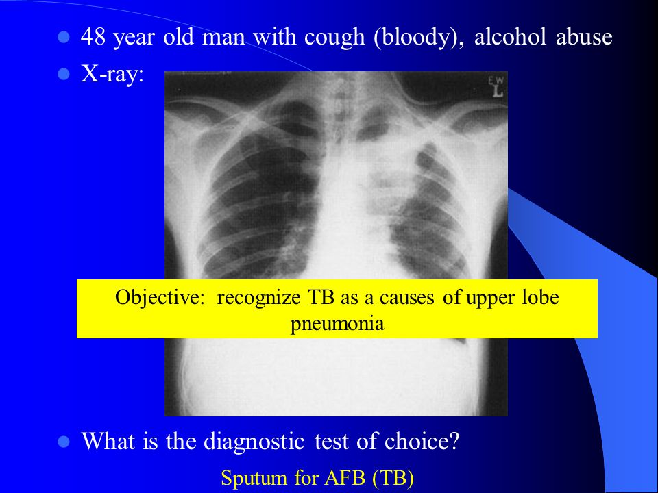 Objective: recognize TB as a causes of upper lobe pneumonia