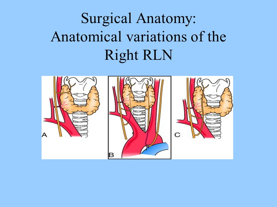 Surgical Anatomy: Anatomical variations of the Right RLN