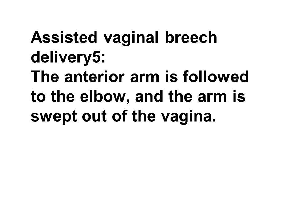 Assisted vaginal breech delivery5: