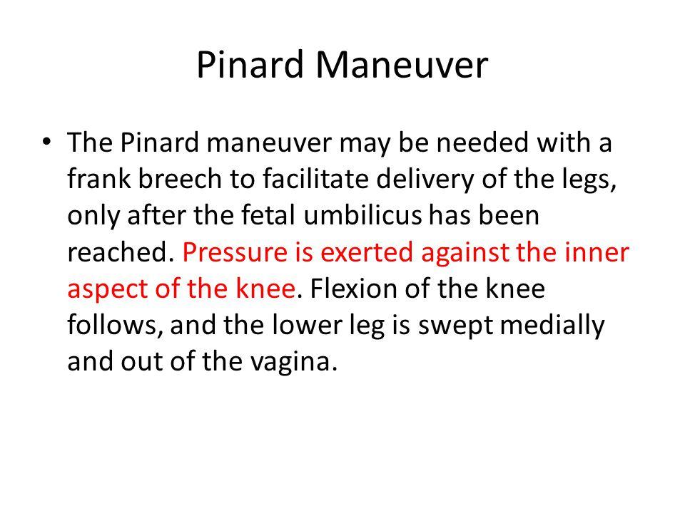 Pinard Maneuver