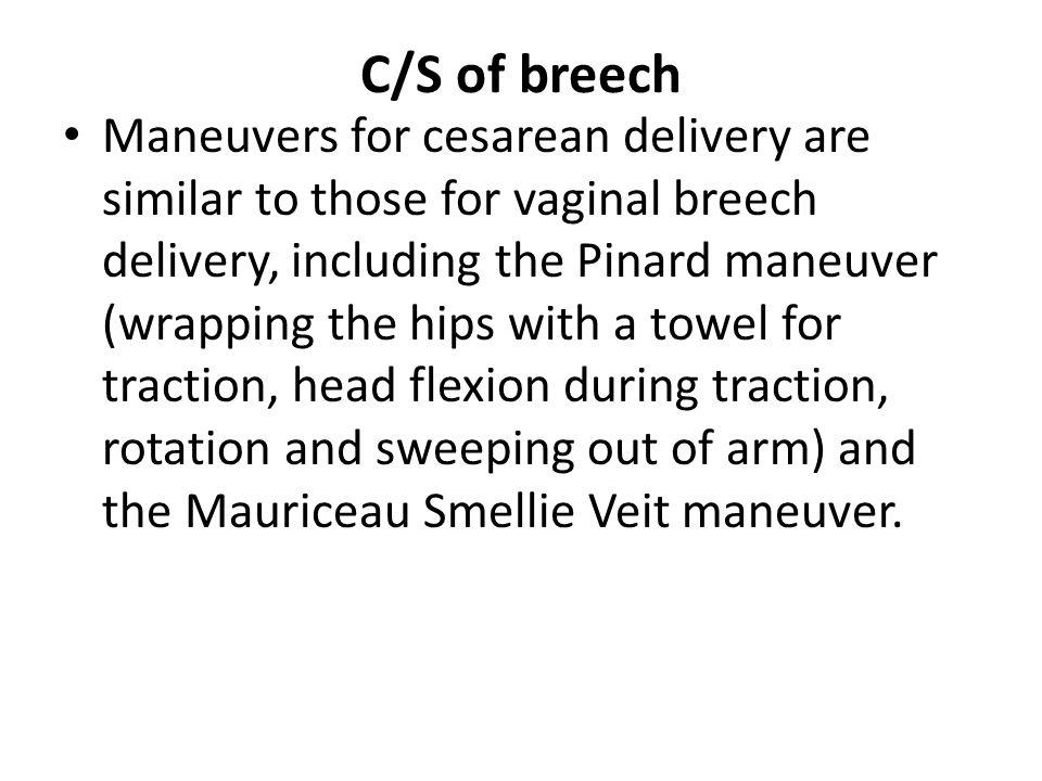 C/S of breech