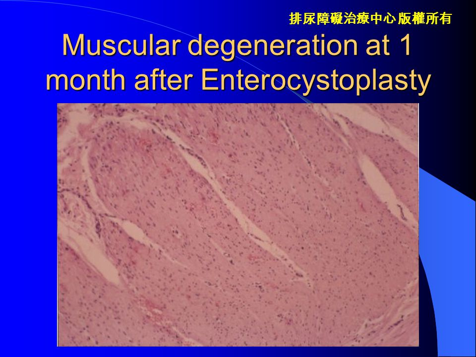 Muscular degeneration at 1 month after Enterocystoplasty