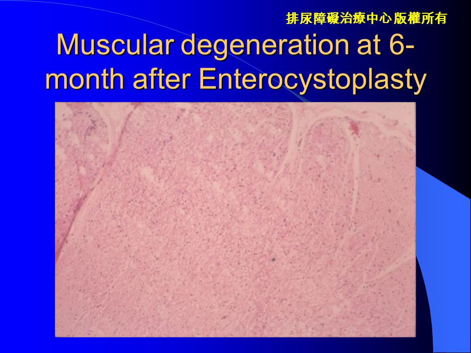 Muscular degeneration at 6-month after Enterocystoplasty