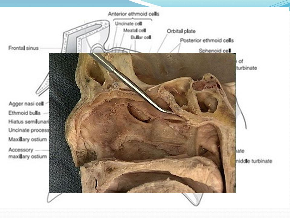 OMC Infundibulum – funnel shaped area whereby the maxillary, ant ethmoid and frontal sinuses drains.