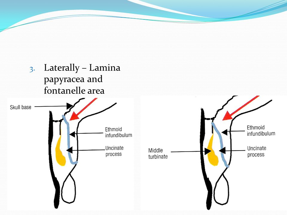 Laterally – Lamina papyracea and fontanelle area