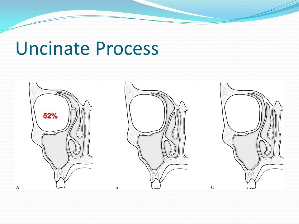 Uncinate Process 52%