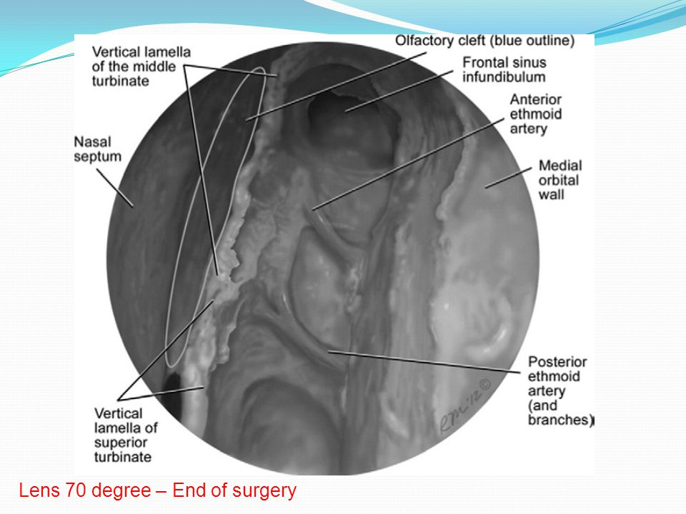 Lens 70 degree – End of surgery