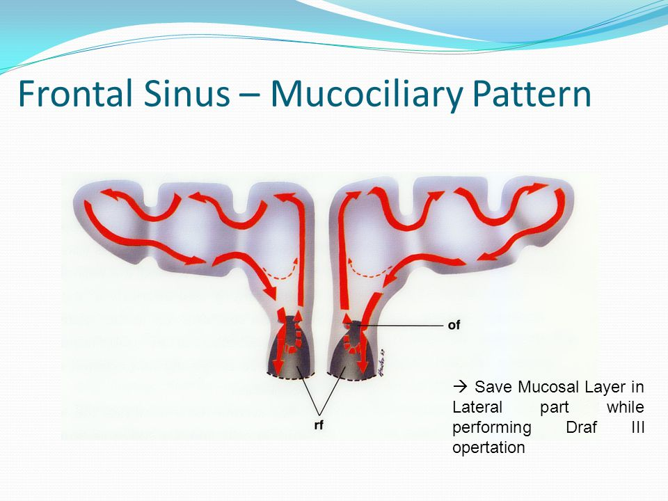 Frontal Sinus – Mucociliary Pattern
