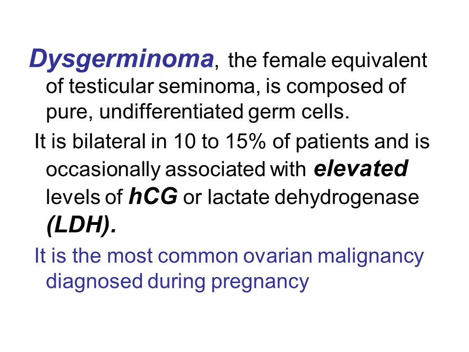 Dysgerminoma, the female equivalent of testicular seminoma, is composed of pure, undifferentiated germ cells.