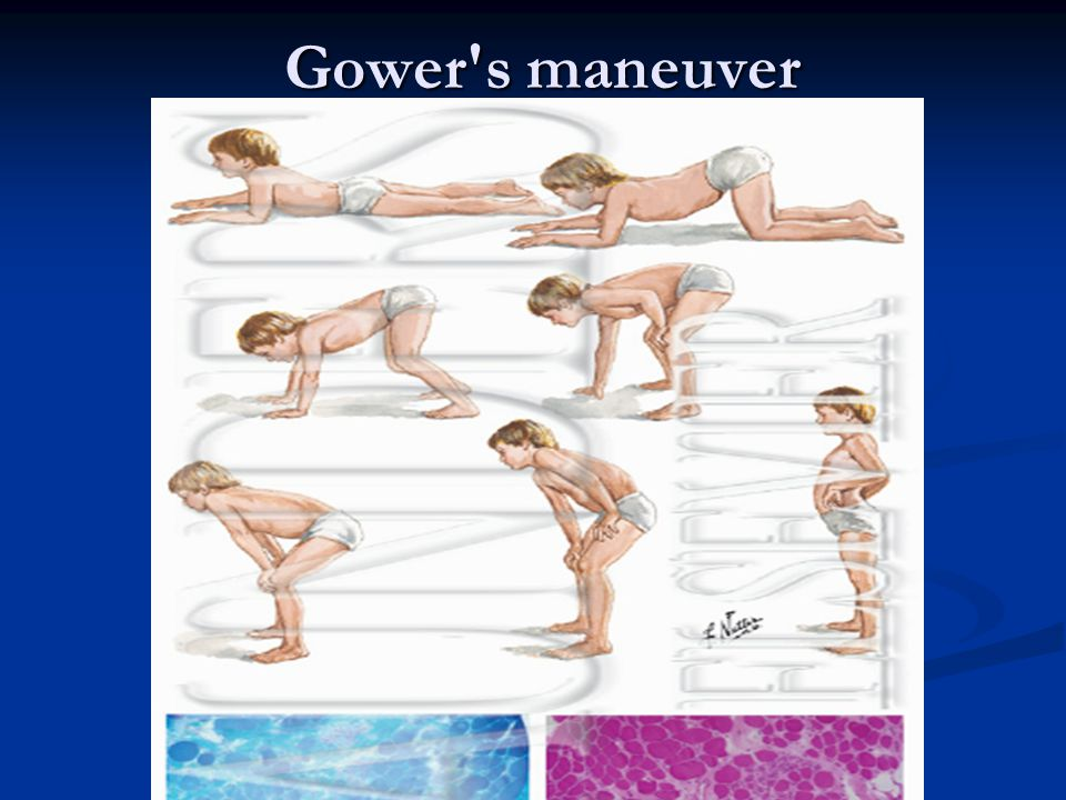Gower s maneuver