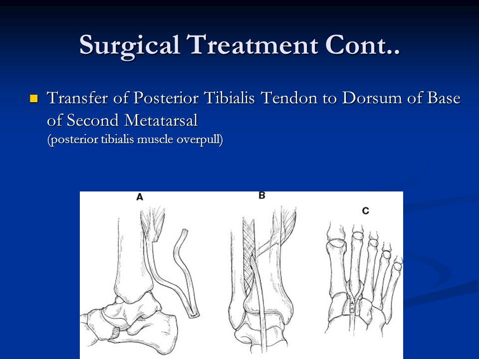 Surgical Treatment Cont..