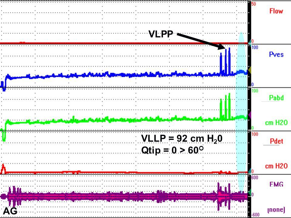 VLPP VLLP = 92 cm H20 Qtip = 0 > 60O AG AG AG
