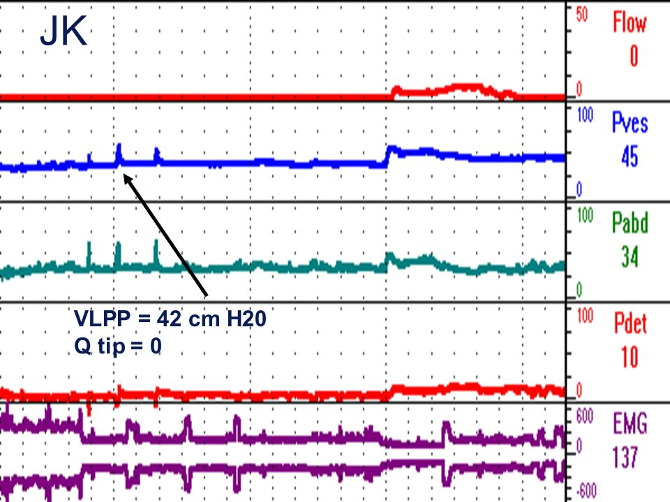 JK VLPP = 42 cm H20 Q tip = 0