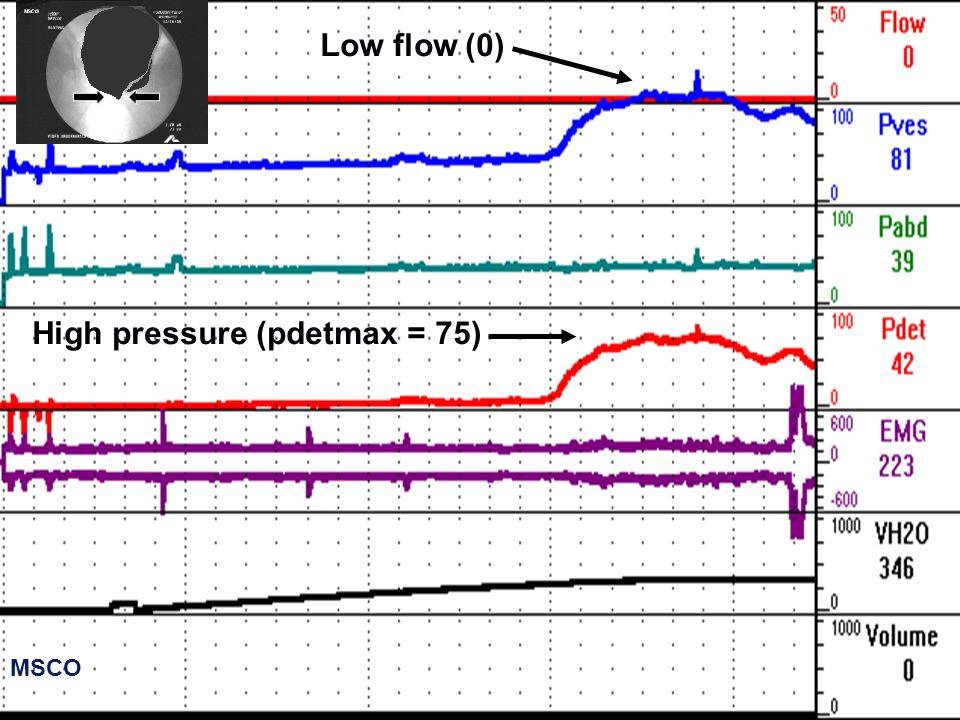 High pressure (pdetmax = 75)
