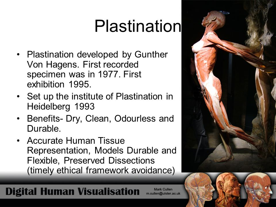 Plastination Plastination developed by Gunther Von Hagens. First recorded specimen was in 1977. First exhibition 1995.