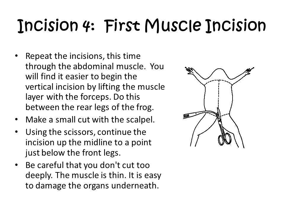 Incision 4: First Muscle Incision
