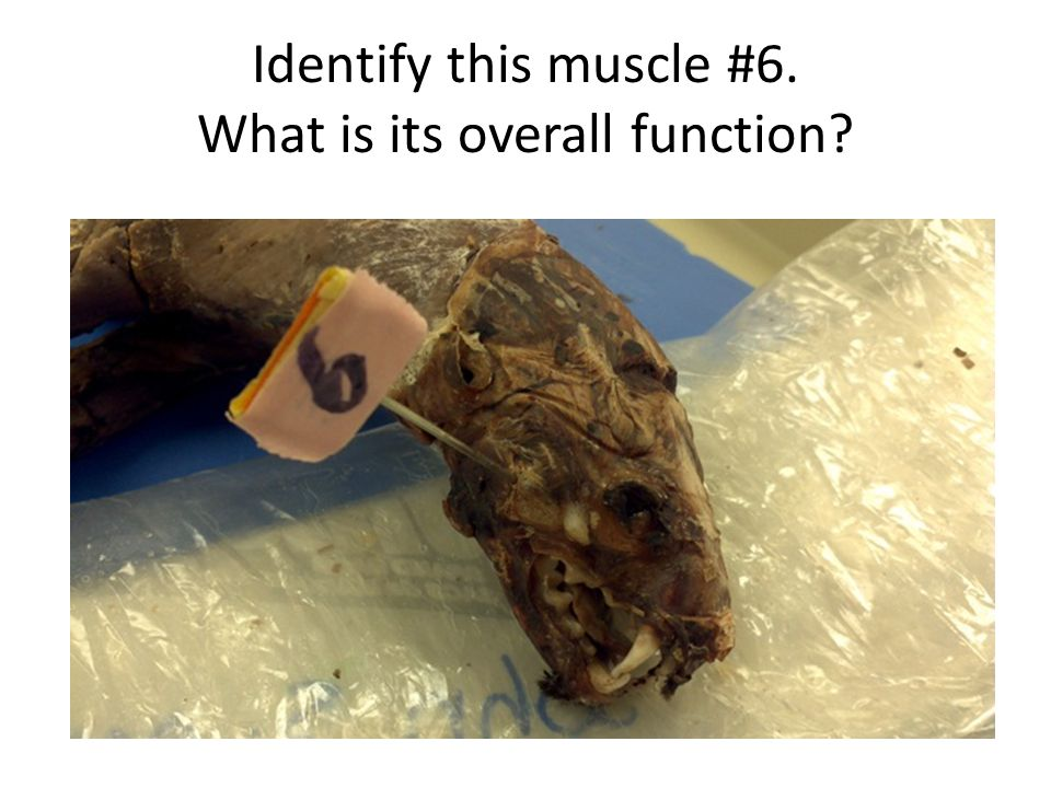 Identify this muscle #6. What is its overall function