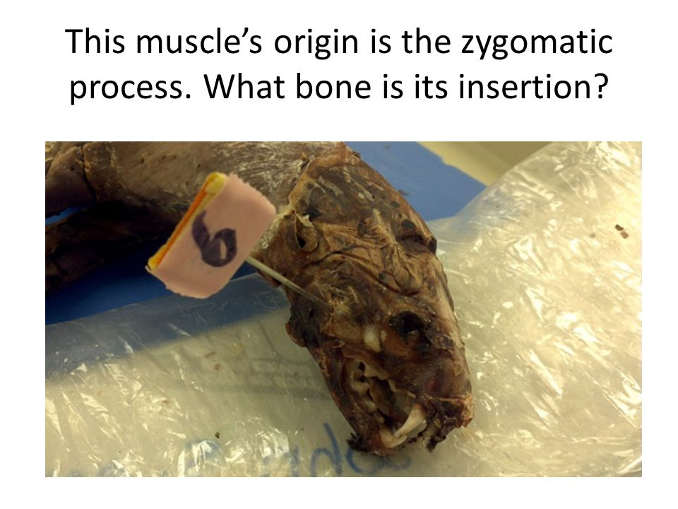This muscle's origin is the zygomatic process