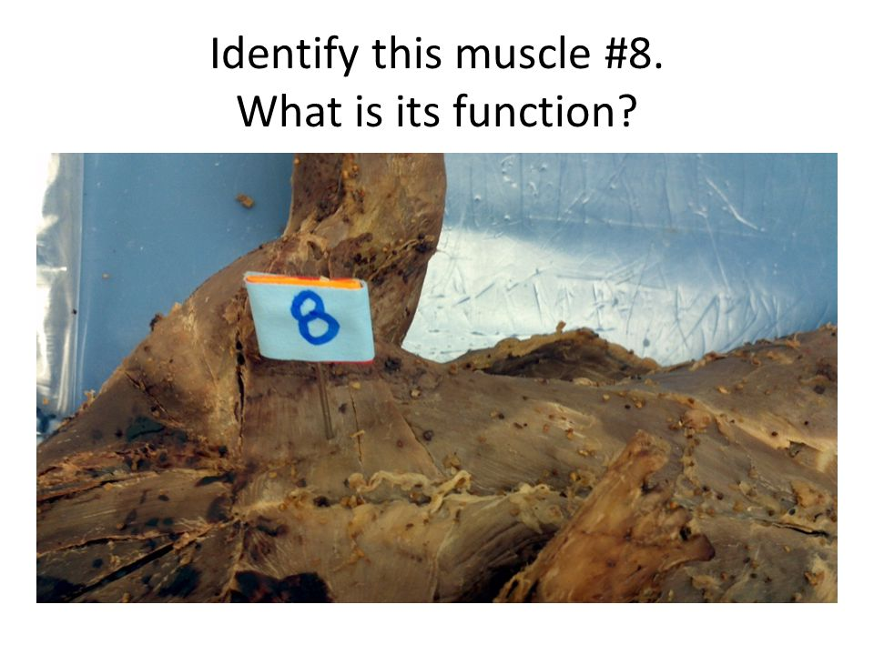 Identify this muscle #8. What is its function