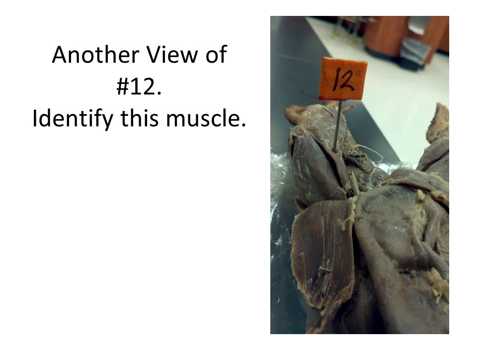 Another View of #12. Identify this muscle.
