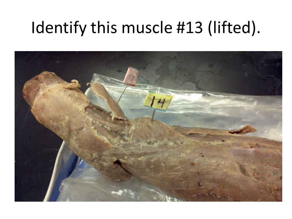 Identify this muscle #13 (lifted).
