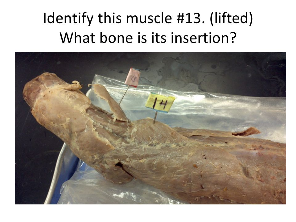Identify this muscle #13. (lifted) What bone is its insertion