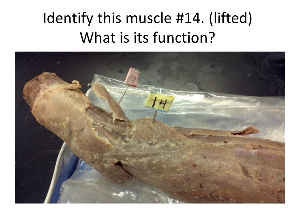 Identify this muscle #14. (lifted) What is its function