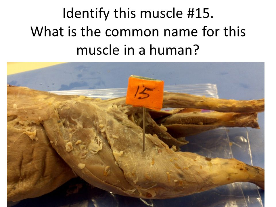 Identify this muscle #15. What is the common name for this muscle in a human