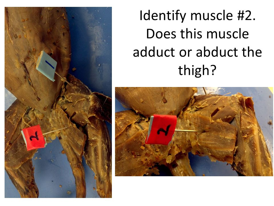 Identify muscle #2. Does this muscle adduct or abduct the thigh