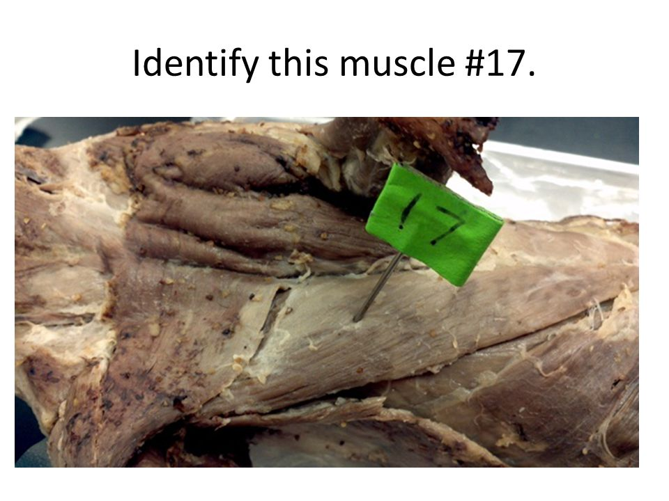 Identify this muscle #17.