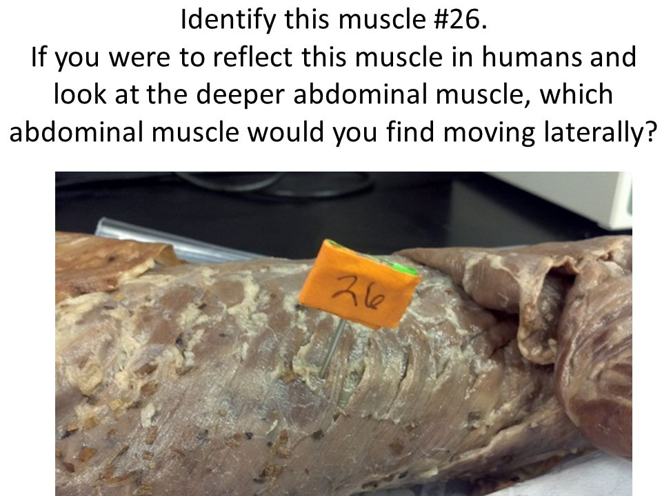 Identify this muscle #26.