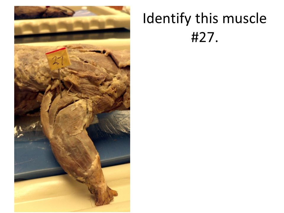 Identify this muscle #27.