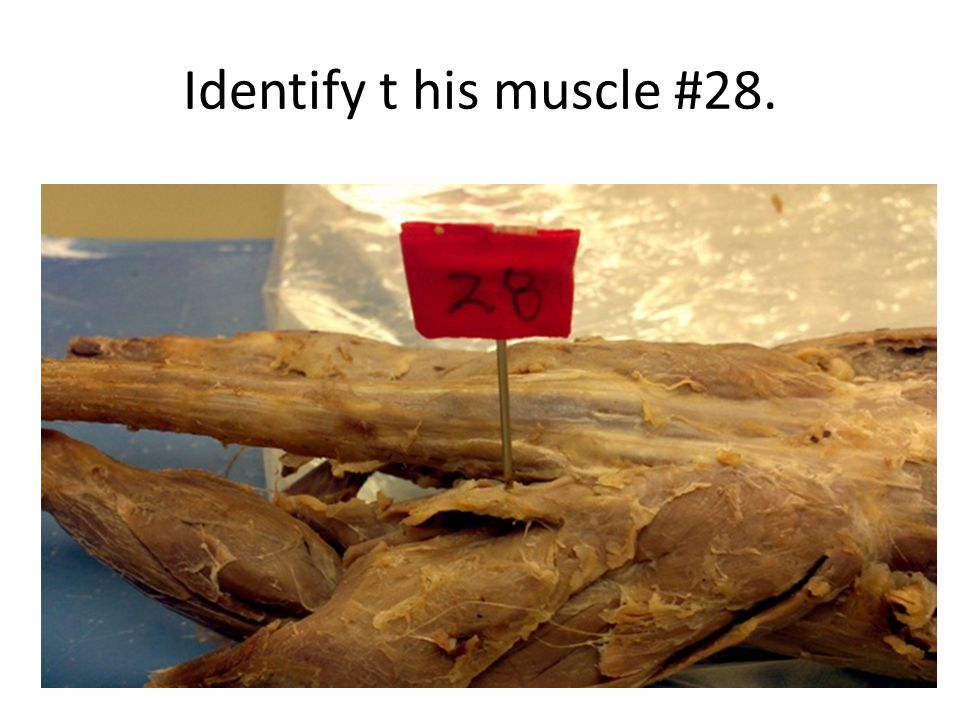 Identify t his muscle #28.