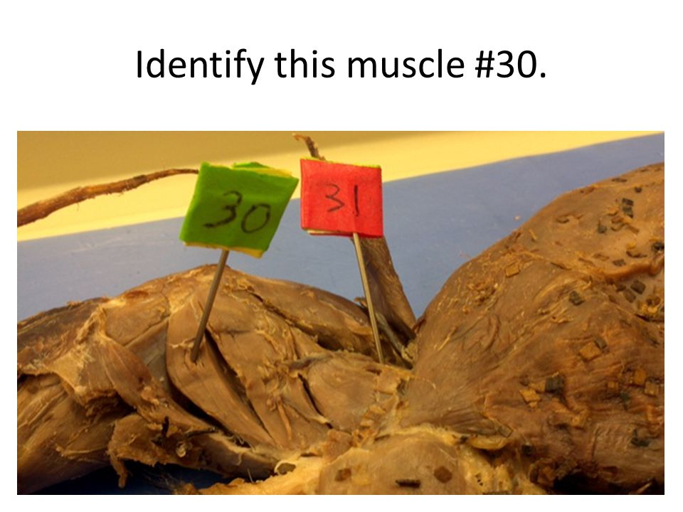 Identify this muscle #30.