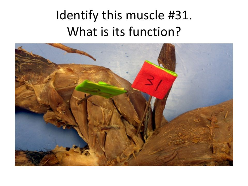 Identify this muscle #31. What is its function
