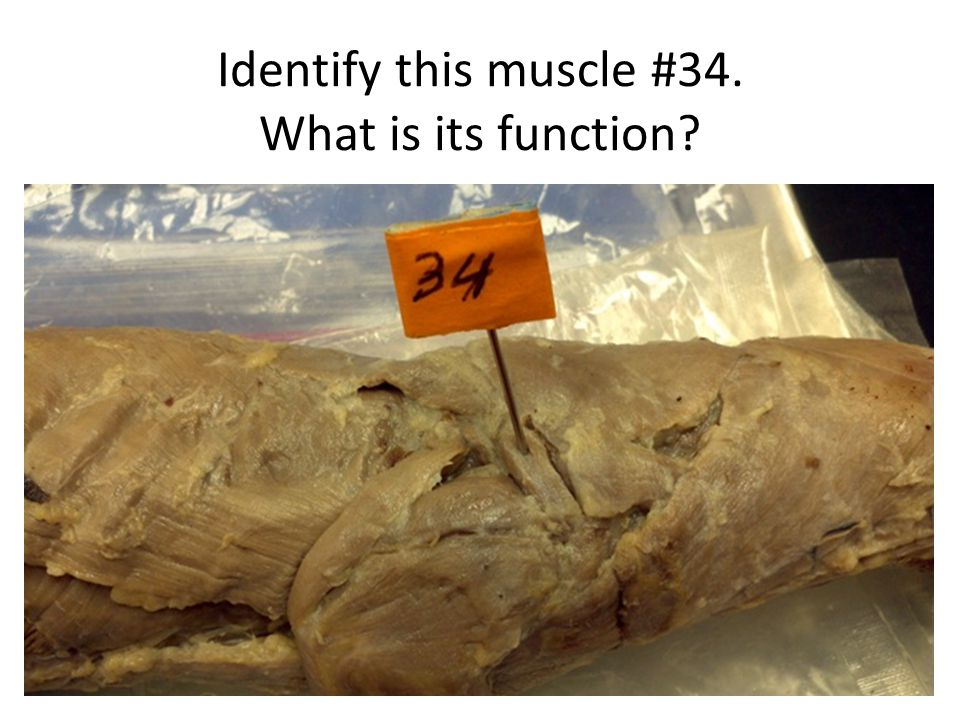 Identify this muscle #34. What is its function