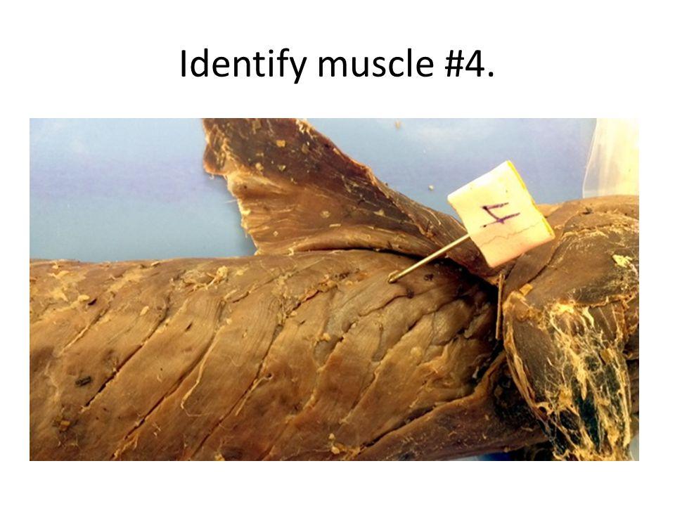 Identify muscle #4.