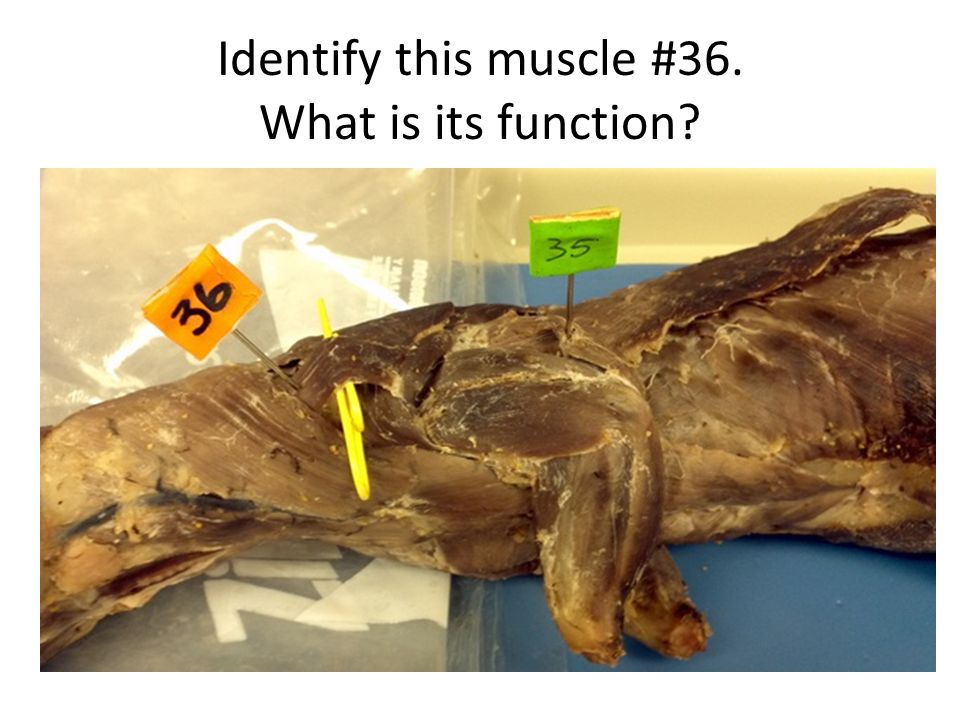 Identify this muscle #36. What is its function