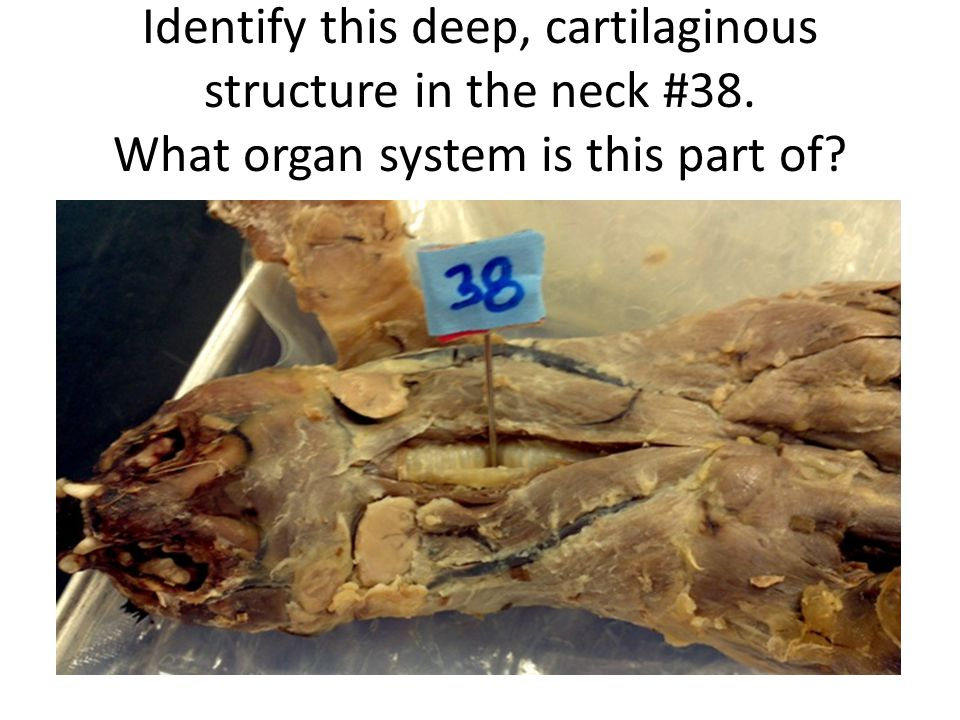 Identify this deep, cartilaginous structure in the neck #38