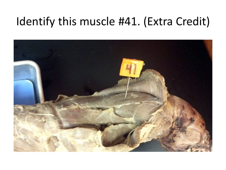 Identify this muscle #41. (Extra Credit)