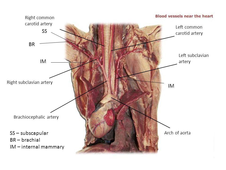 SS BR IM IM SS – subscapular BR – brachial IM – internal mammary