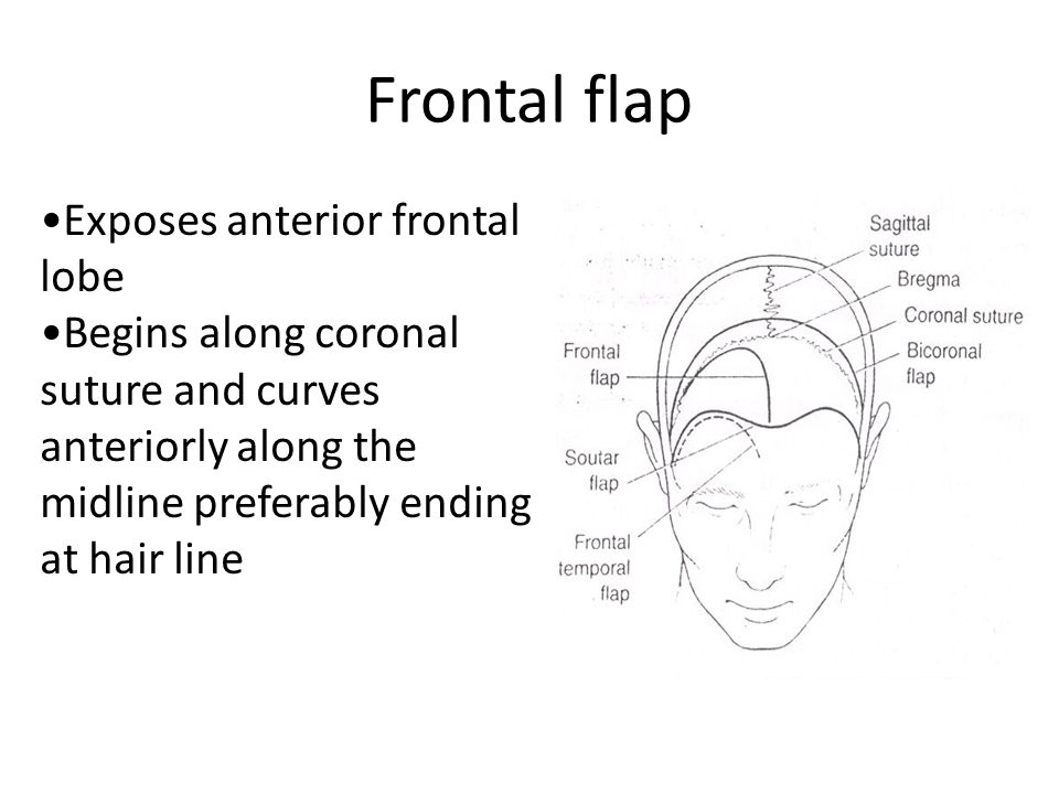 Frontal flap Exposes anterior frontal lobe