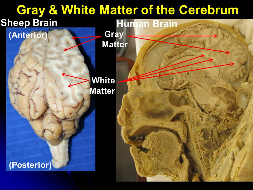 Gray & White Matter of the Cerebrum