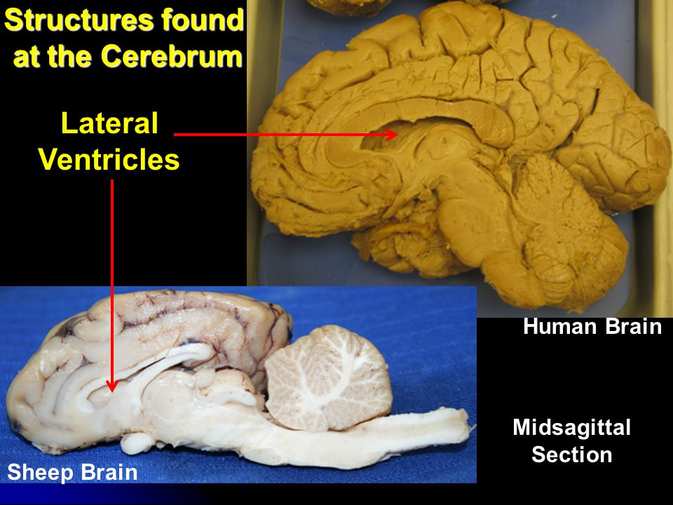 Structures found at the Cerebrum
