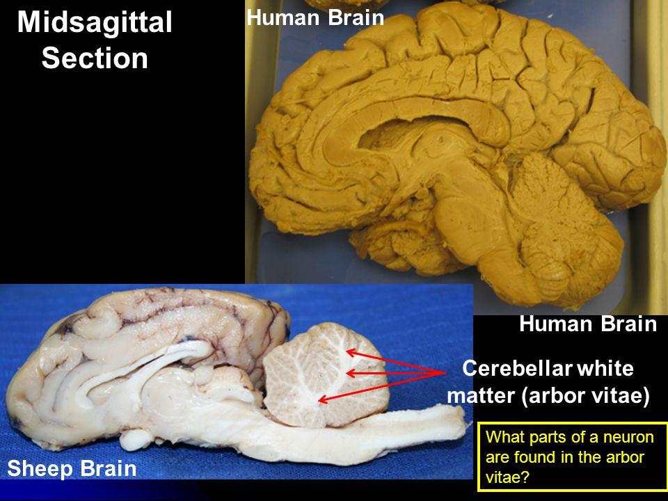 Cerebellar white matter (arbor vitae)
